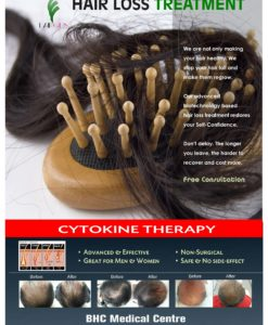 HAIR LOSS TREATMENT PRODUCT